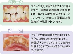 【悲報】歯医者に虫歯治療に行ったのに下の歯石を取っただけで終了wwwwwwwwwww