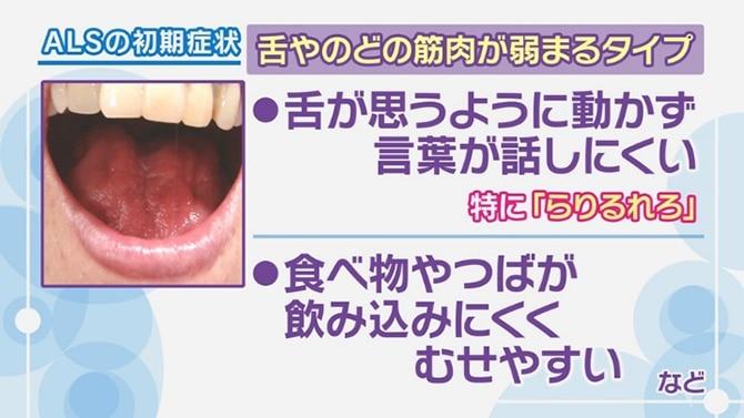 Eテレのニャンちゅう役声優・津久井教生さん(58)、難病ALSを公表「出来る限り前に進む」