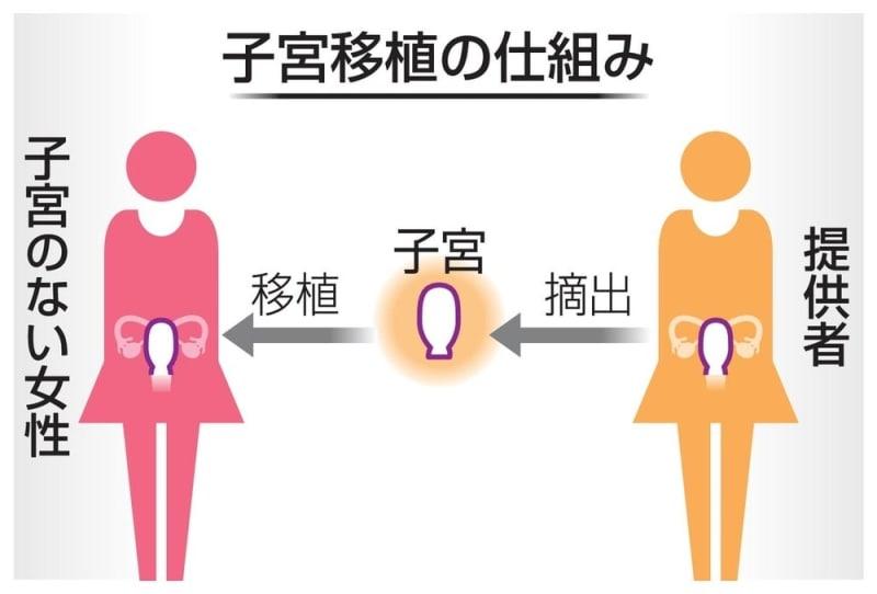 「子宮移植」で出産、肯定意見が否定を上回る(東大研究)